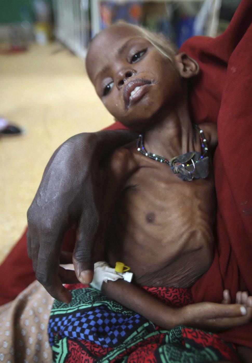 somalia-el-peor-rostro-los-ninos-son-los-que-mas-sufren-foto-reuters.jpg