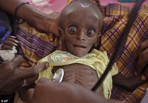 somalia-nino-desnutrido-foto-ap.jpg